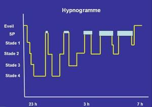 hypnogramme